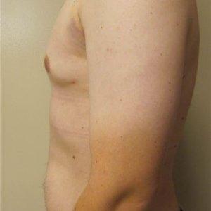 manhattan gynecomastia surgery after 6